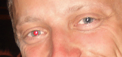 Red eye removed